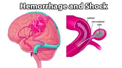 what is hemorrhagic shock